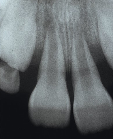 X-ray of teeth roots damaged by gap bands, requiring extensive oral surgery. Photo from American Journal of Orthodontics and Dentofacial Orthopedics